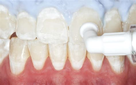 Icon - Caries Infiltrant smooth surface